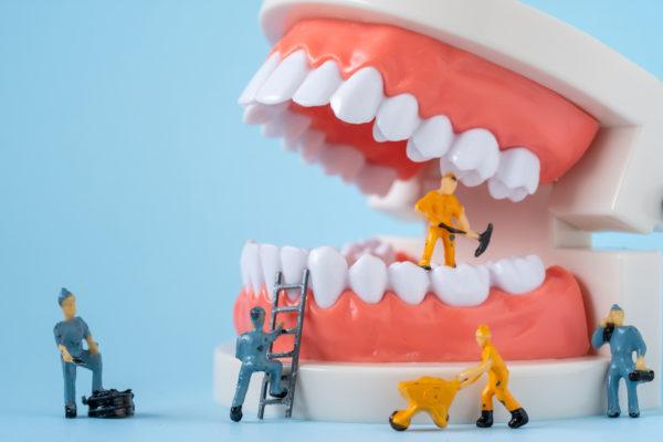 5 Types of Restorative Dental Treatment